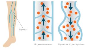 Заболевание варикоз уход